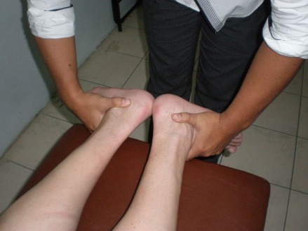 Mis pies antes....